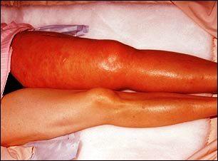 Trombosis venosa aguda