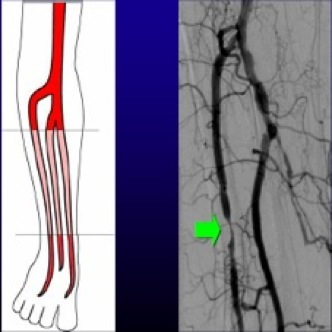 Arteropatía obstructiva crónica o Claudicación intermitente