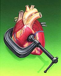 Hipetensión arterial