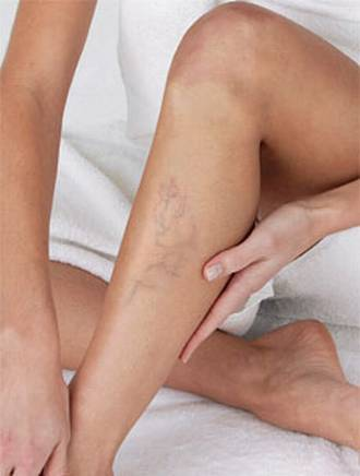 Como curar los pies que se han enrojecido a la tromboflebitis