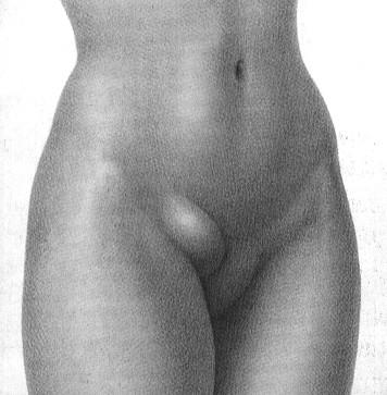 Hernia inguinal derecha