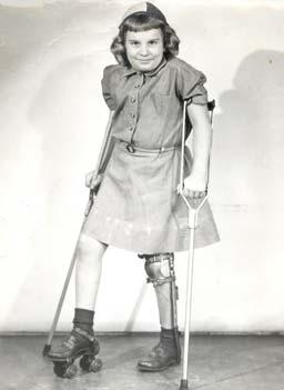 La poliomielitis es una enfermedad viral que puede afectar los nervios ...