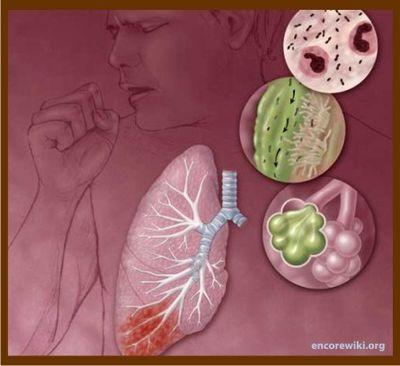 rinofaringitis