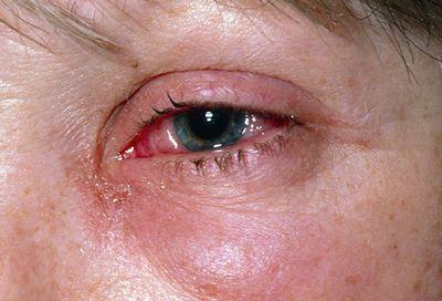 irritacion de ojo