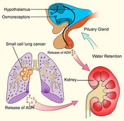 Síndrome de secreción inadecuada de la Hormona Antidiurética