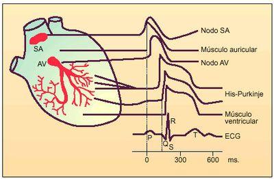 Síndrome del Nodo Enfermo