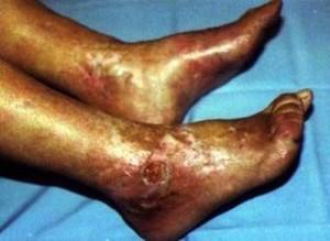 Síndrome antifosfolípido catastrófico