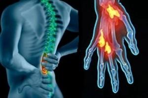 medicina alternativa para los dolores reumáticos