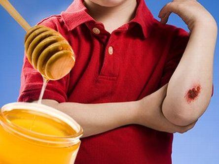 Es cierto que la miel desinfecta y cicatriza las heridas profundas