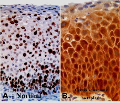 Metaplasia escamosa del cuello uterino