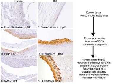metaplasia escamosa madura es cáncer