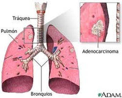 Adenocarcinoma pulmonar