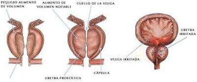 Agrandamiento de la prostata