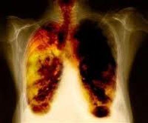 Carcinoma pulmonar de celulas grandes