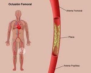 Enfermedad arterial periferica