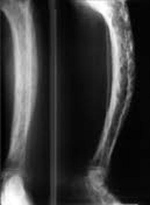 Enfermedad osea (en los huesos) de Paget