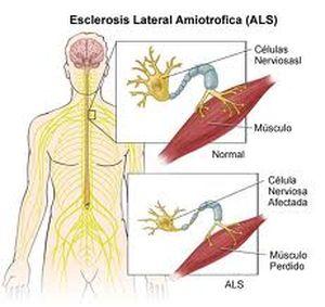 Esclerosis lateral amiotrofica (ELA)