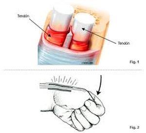 tendinitis de Quervain