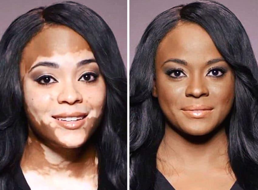 Existen tratamientos para mitigar temporalmente el efecto del vitiligo (Quitar manchas de vitiligo)