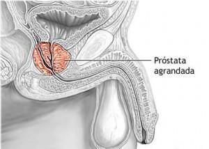Alimentos para combatir el crecimiento de la próstata