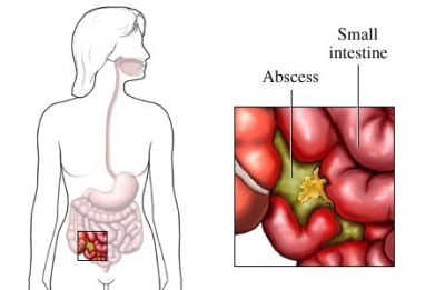 Absceso intraabdominal