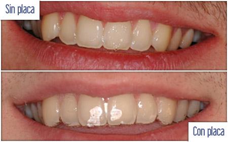 Un novedoso sistema de alineación dental invisible