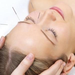 Acupuntura para cefaleas