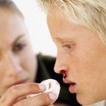 Hemorragia nasal