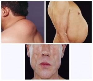 Almohadilla de grasa en la parte posterior del cuello