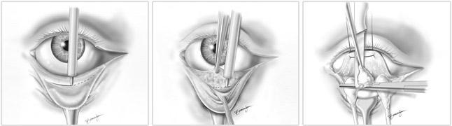 blefaroplastia inferior