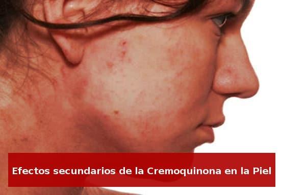 La dermatitis de contacto o dermatitis alérgica es uno de los efectos secundarios de la cremoquinona más comunes