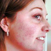 reaccion alérgica en la cara, una de las contraindicaciones de la cremoquinona más comunes