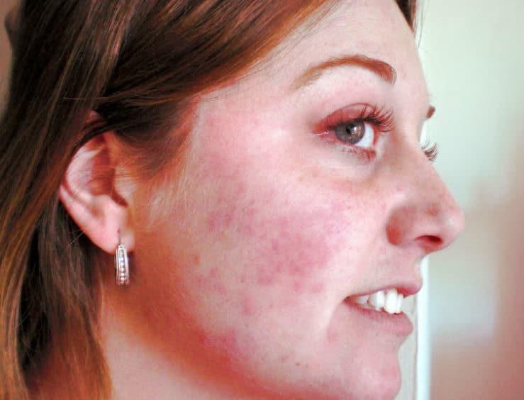 Las reacciones alérgicas en diferentes partes del cuerpo (en la cara en este caso) son una de las contraindicaciones de la cremoquinona