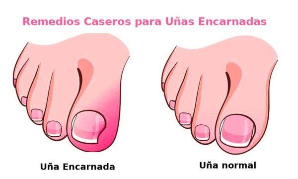 remedios para uñas encarnadas