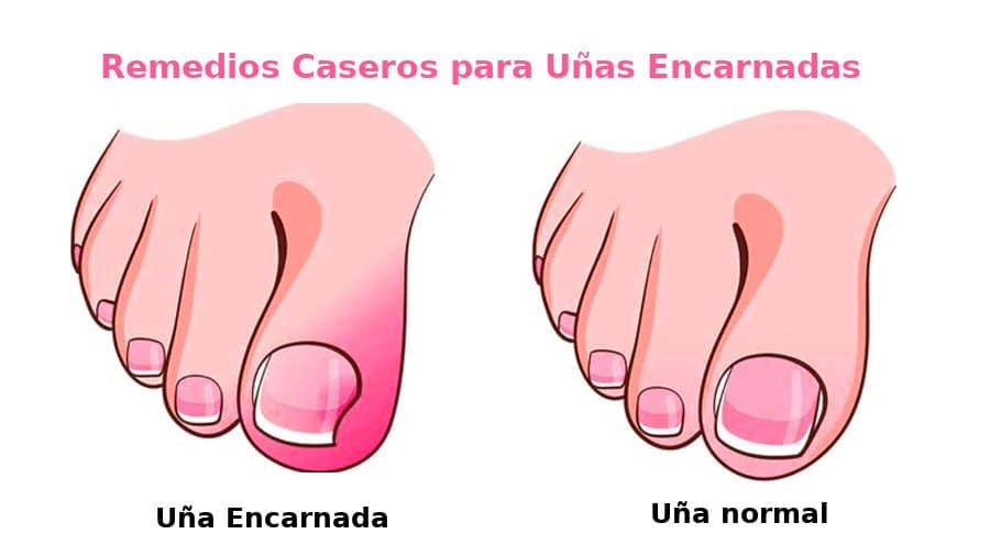 Los mejores 5 remedios caseros para uñas encarnadas
