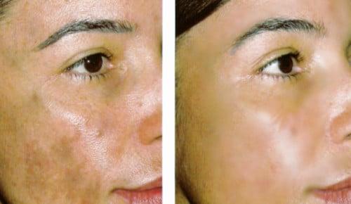 La aclaración de la piel es más que evidente en ese caso, desaparece la mancha grande que se ubica en la mejilla izquierda